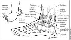 Manual therapy = supervised exercise for ankle sprains Ankle Anatomy, Ankle Injuries, Ankle Fracture, Sprained Ankle, Learning To Let Go, Family Doctors, Sports Medicine, Medical Information, Socialism