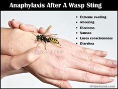 Wondering on what to do for wasp sting? This article provides information on symptoms of wasp sting, treatment, home remedies found in kitchen, herbal remedies from your garden if you are stung by wasp. Wasp Sting Swelling, Wasp Stings Relief, Herbal Remedies, Home Remedies, Remedies For Bee Stings, Natural Health Tips, Insect Bites