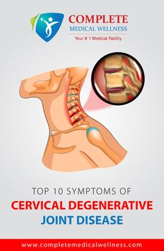 Cervical Degenerative Joint Disease is one of the most common cause of cervical neck pain. It may cause debilitating pain & restrict neck mobility. For the most effective and reliable Neuro Spine Care in NJ, CMW is the answer. Spine Care, Pain Management, Neck Pain, Care About You, Medical, Medicine, Med School, Active Ingredient