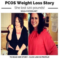 She lost 120 pounds with PCOS.  Read her story...