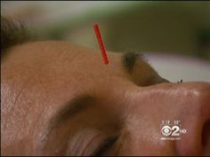 Laura Glynn of Chicago undergoes acupuncture treatment for allergies. (Credit: CBS)