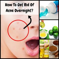How to make acne go away in one night