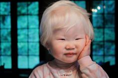 Asian girl with albinism