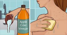Put Apple Cider Vinegar On Your Face And See What Happens To Your Age Spots,Acne And More