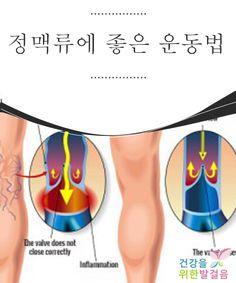 정맥류에 좋은 운동법 정맥류는 가장 흔하게 발생하는 혈액순환 질환 중에 하나로, 특히 여성에게 많이 발생하지만 남자들에게도 생길 수 있는 질환이다. 정맥류는 일반적으로 정맥이 확장되어 정상적인 혈액순환이 되지 않는 것을 말한다. 정맥류는 제대로 치료하지 않으면 심각한 문제가 될 수 있는 질환이므로, 정맥류에 좋은 운동법을 배워보도록 하자
