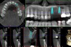 Large defect in #12 pontic area and the bone is also a little thinner than ideal in both implant sites.