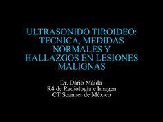 ULTRASONIDO TIROIDEO:  TECNICA, MEDIDAS     NORMALES YHALLAZGOS EN LESIONES      MALIGNAS        Dr. Dario Maida    R4 de…