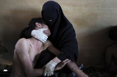 World Press Photo 2012 winners  Samuel Aranda, of Spain, won Photo of the Year for this picture, taken for the New York Times, which shows a woman holding a wounded relative during protests against Yemeni President Ali Abdullah Saleh in Sanaa, Yemen.  Samuel Aranda / AP