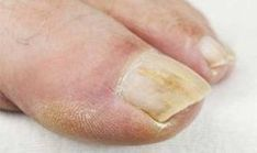 Fingernail Fungus Pictures – Best Toe Fungus Treatment Vinegar – The Truth Is You Simply Do Not Know About Toenail Fungus Black Toenail Fungus, Fingernail Fungus, Toenail Fungus Remedies, Fungus Toenails, Toe Fungus Treatment, Toenail Fungus Treatment, Nailed It, Recipes, Menopause