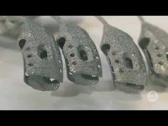 Un paciente de cáncer recibe como trasplante un esternón y costillas de titanio construidas gracias a la tecnología