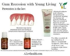 Young Living Thieves has #clove, known throughout the world as being used by dentists for dental help. http://yldist.com/a2z4health/  #teeth #essentialoils