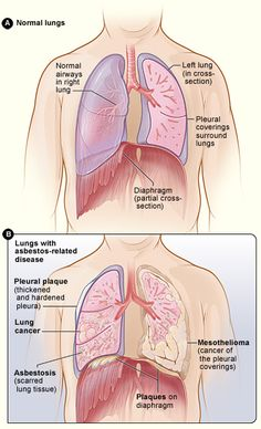 Figure A shows the location of the lungs, airways, pleura, and diaphragm in the body. Figure B shows lungs with asbestos-related diseases, including pleural plaque, lung cancer, asbestosis, plaque on the diaphragm, and mesothelioma.