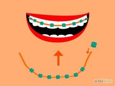 Make Fake Braces! https://www.facebook.com/phandentalyeg https://twitter.com/PhanDental