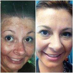 Amazing before and after with R+F REVERSE!      PC Perks (Preferred Customer) = 10% Discount on ALL Products and FREE Shipping!  Start TODAY!   www.greatskinrf.com or suzcan2@gmail.com