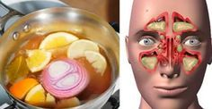 They Call It 'The Bomb'! A Remedy That Removes Nasal Congestion, Sinusitis and Flu In … Health Remedies, Home Remedies, Natural Remedies, Natural Treatments, How To Treat Flu, Sante Plus, Natural Medicine, Healthy Tips, Stay Healthy