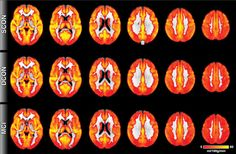 Radiologists use MRIs to find biomarker for Alzheimer's disease | Los Angeles Times   #Alzheimers #radiology