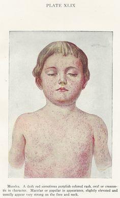 Measles, Vintage Medical Illustration, 1925