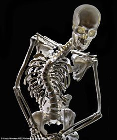 Richard wasn't a hunchback, but he did have scoliosis. The 'well balanced curve' of Richard III's spine could have been concealed by a tailor and custom-built armour. Tudor History, European History, British History, Ancient History, King Richard 111, Historical Women, Historical Photos, Strange History, Houses