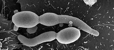 Candida-albicans Candida Albicans, Cooking, Healthy, Kitchen, Health, Brewing, Cuisine, Cook