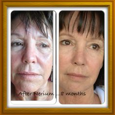 These are results from a customer in Arizona! As an added result to her skin improvements, she is more confident than ever! This is one of the many ways that Nerium changes lives. You know you want some! Message me!   www.lisacraig.arealbreakthrough.com