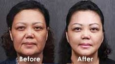 What would you do To Look 15 Years Younger? A Famous Celebrity Doctor's New Wrinkle Remover Does Exactly That! - Botox Doctors Are Outraged By The Results! Shape Magazine, Acide Aminé, Anti Aging Supplements, Anti Ride, Les Rides, Anti Aging Treatments, Pores, Sagging Skin, Anti Aging Tips