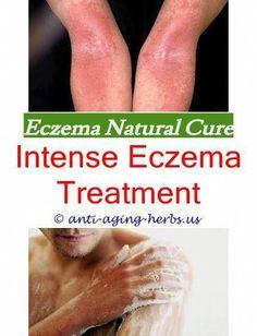 Aquaponics Grow Lights  #NummularEczema Eczema Scars, Nummular Eczema, Eczema Causes, Severe Eczema, Eczema Relief, Eczema Remedies, Itch Relief, Eczema Symptoms, Face Eczema