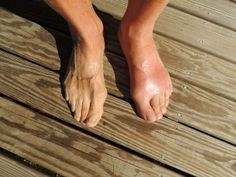 Naturopathic Medicine for Gout  http://www.naturopathicmedicinelist.com/naturopathic-medicine-for-gout/ Symptoms Gout is characterized by intense joint pain and is usually located in the first joint of the big toe. Gouty joints are swollen and red with some patients experiencing fever and/or chills. A gout attack usually lasts 5-7 days. The red swollen joints can occur ¡n the ankle, shoulder, ...