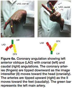 Normal Coronary Angiogram Coronary Angiography Of The