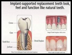 Did you know implant- supported replacement teeth look, feel and function like natural teeth. #DrSunali #DentalImplant
