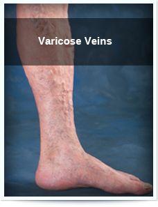 Sarcină varicosity cumperi