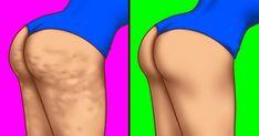 Nyakunkon a nyár, a nyaralás és ki jobban, ki kevésbé, de mindannyian szeretnénk kicsit formába lendülni a nyári kiruccanásokhoz. Íme néhány tipp, amitől szép és egyenletes lesz a bőrünk: Megfelelő táplálkozás. Általános tévhit: ha lefogyunk, a cellulitisz eltűnik. Ez nem igaz. A cellulitisz e