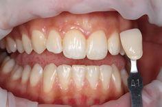 :) Laser Dentistry, Port Chester, Family Dentistry, Teeth Whitening, Food, Tooth Bleaching, Essen, Meals, Yemek