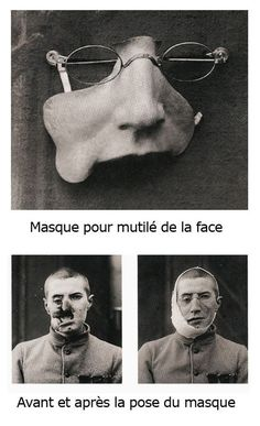 Early plastic surgery art -- artists made masks for many men wounded in the face during WWI. This is the heart, the root, of plastic by My.Life.With.Aspergers