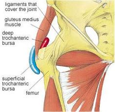 Trochanteric bursitis is inflammation of the bursa (a small, cushioning sac located where tendons pass over areas of bone around the joints), which lies over the prominent bone on the side of your hip (femur). Hip Bursitis Exercises, Bursitis Hip, Posture Exercises, Edema, Tight Hip Flexors, Psoas Muscle, Hip Pain, Hip Workout, Sciatica