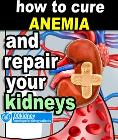 If you want to beat kidney disease, you're will have to beat anemia too. If you have symptoms such as fatigue, cold hands and feet or headaches, it's probably anemia.  there are home remedies, superfoods and supplements that work to manage and treat anemia.  And most important, when you'll beat anemia, you're not just going to feel a lot better, you're also going to repair your kidneys. Cold Hands, Kidney Disease, Superfoods, Home Remedies, The Cure, Wellness, Fitness, Tips, Kidney Disease Diet