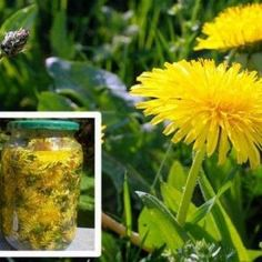 Cholesterol Cure - Even though considered a weed, dandelion root has a long history of therapeutic use. In fact, this extremely beneficial plant has the ability to treat allergies, lower cholesterol levels, stimulate the. - The One Food Cholesterol Cure Natural Cures, Natural Healing, Cholesterol Levels, The Cure, Vitiligo Treatment, Cancer Treatment, Cancer Cure, Cancer Cells, Medicinal Plants
