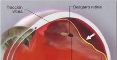 Desprendimiento de Retina: Causas y Tratamiento   http://www.oftavision.com.mx/desprendimiento-de-retina-causas-y-tratamiento/
