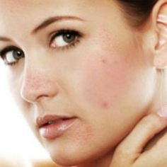 Home remedies for acne. This site has lots of home remedies!