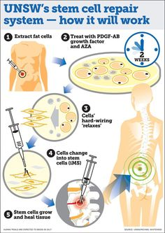 Stem Cell Technique Could Regenerate Any Human Tissue Damaged By Aging or Disease - A team led by the University of New South Wales says that a stem cell therapy capable of regenerating any human tissue could be available within a few years. What Is Stem, Human Tissue, Tissue Engineering, Cord Blood Banking, Stem Cell Research, Cell Biology, Molecular Biology, Teaching Biology, Stem Cell Therapy