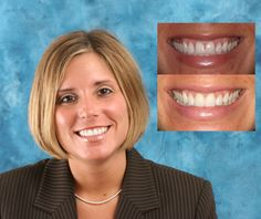 4 Porcelain veneers and teeth whitening to close spacing and improve smile. Cosmetic dentistry by AACD Member Dr. Mike Maroon of Advanced Dental in Berlin, CT.