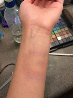 Fake bruise, by myself :) Bruises Makeup, Arm Veins, Mode Turban, Bollywood Quotes, Emotional Photography, Snapchat Picture, Cute Couples Goals, Ulzzang Boy, Hospitals