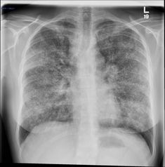 Sarcoidosis | Radiology Case | Radiopaedia.org