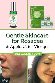 In this post you'll find out how one of our customers is using Hello Cider's Apple Cider Vinegar face toner and wipes to help with rosacea. #skincare #rosacea Natural Toner, All Natural Skin Care, Natural Health, Toner For Face, Skin Toner, Rosacea Remedies, Health Remedies, Beauty, Makeup Eyes