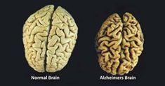 A ausência destas 3 vitaminas estão ligadas à doença de Alzheimer