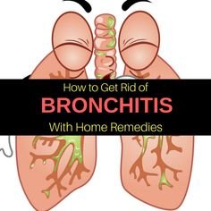 bronchitis causes - apple cider vinegar for bronchial asthma - Home Remedies For Bronchitis, Acute Bronchitis, Asthma Remedies, Home Remedy For Cough, Natural Headache Remedies, Cold Home Remedies, Holistic Remedies, Health, Home Decor Accessories