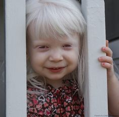 precious little girl with albinism