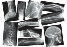 Broken Bones X-Rays – 15 sheets  CC Cycle 3 week 2