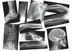 Broken Bones X-Rays – 15 sheets