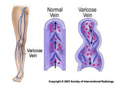 The procedures for cosmetic vein treatment include Sclerotherapy, laser treatments, vein stripping surgeries and EVLT (Endovenous Laser Treatments).   http://www.modernmedicineandyou.com/points-to-remember-before-having-a-cosmetic-vein-treatment-in-your-city/