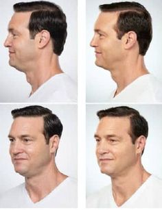 Kybella Treatment #doublechin #chin #beauty #kybella #treatment